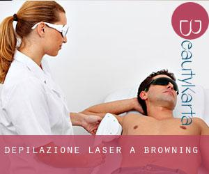 Depilazione laser a Browning