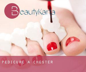 Pedicure a Chester