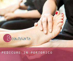 Pedicure in Portorico